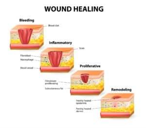 chronic wounds 3